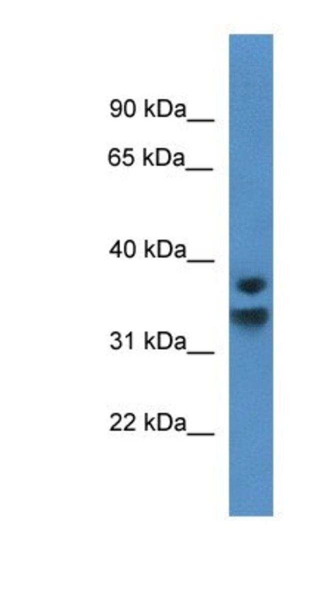 NFKBID Rabbit anti-Human, Polyclonal, Novus Biologicals 100µL; Unlabeled:Life