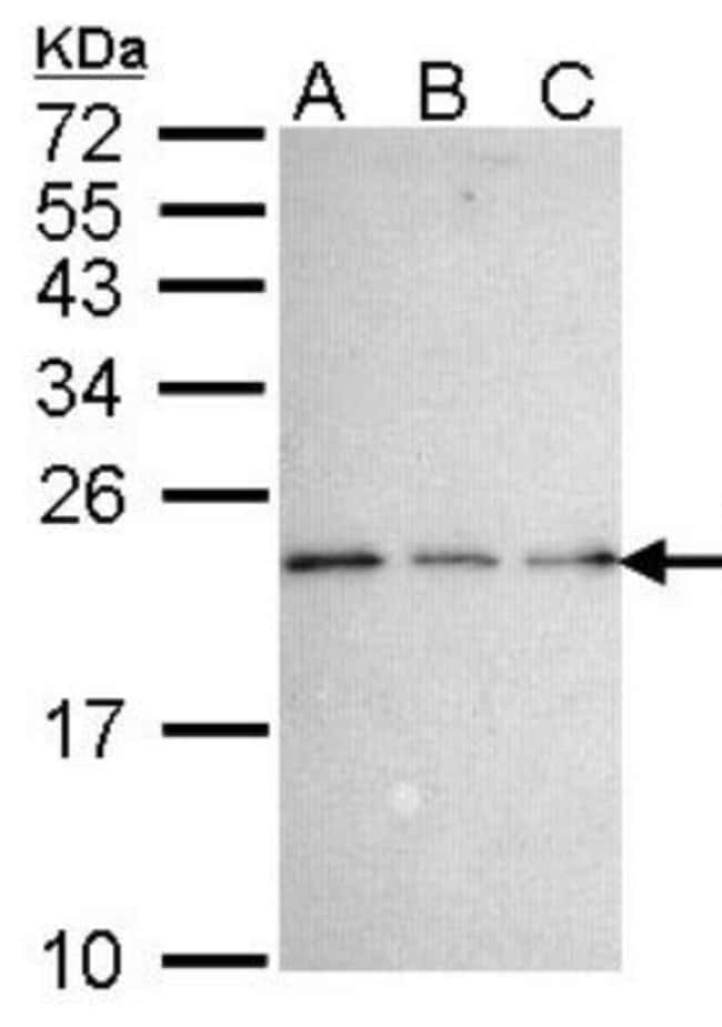 anti-NGFRAP1/BEX3/NADE, Polyclonal, Novus Biologicals 0.1mL; Unlabeled:Life