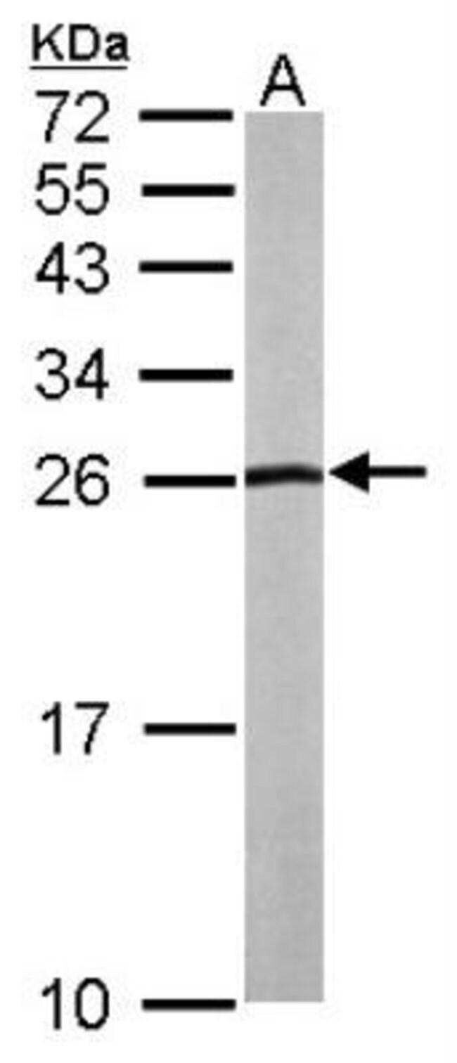 anti-NHERF-2, Polyclonal, Novus Biologicals 0.1mL; Unlabeled:Antibodies