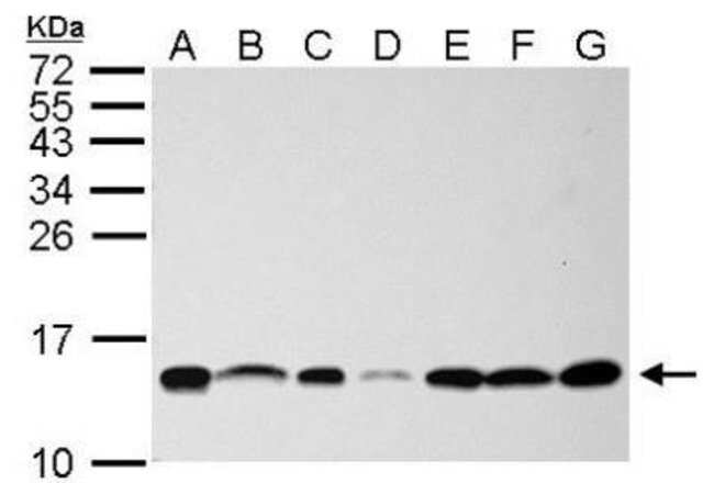 anti-NHP2L1, Polyclonal, Novus Biologicals 100 ul; Unconjugated:Life Sciences
