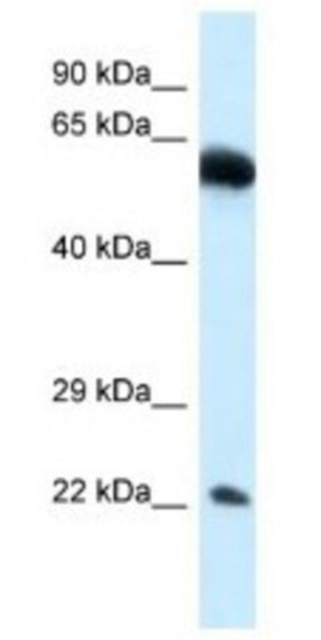 NICN1 Rabbit anti-Human, Polyclonal, Novus Biologicals 100µL; Unlabeled:Life
