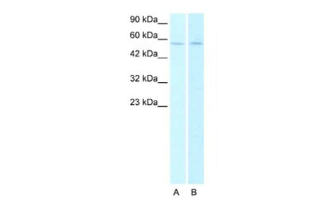 Nicotinic Acetylcholine R alpha 2/CHRNA2 Rabbit anti-Human, Polyclonal,
