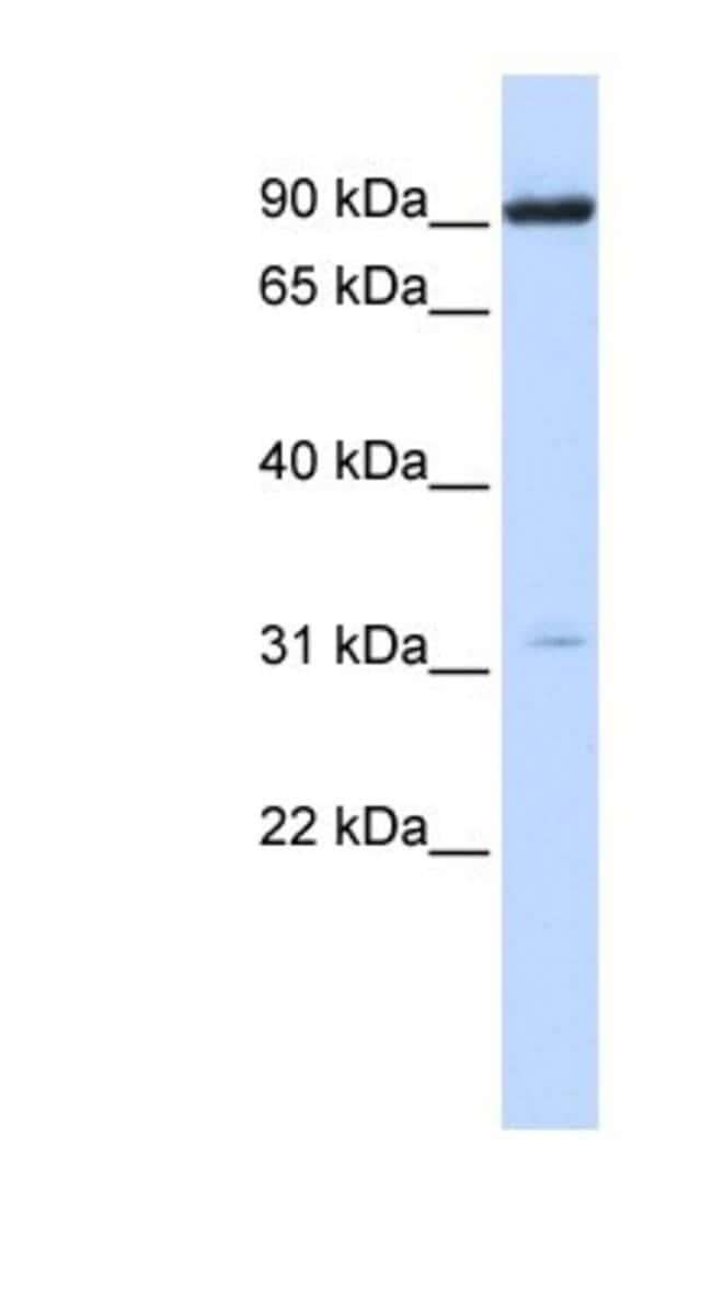 Nicotinic Acetylcholine R alpha 4/CHRNA4 Rabbit anti-Human, Mouse, Rat,