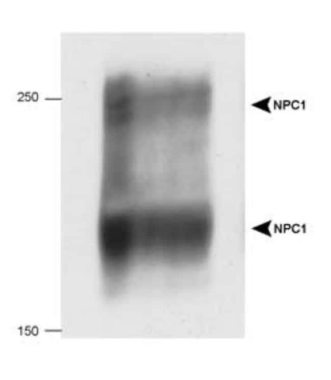 anti-Niemann-Pick C1, Polyclonal, Novus Biologicals:Antibodies:Primary
