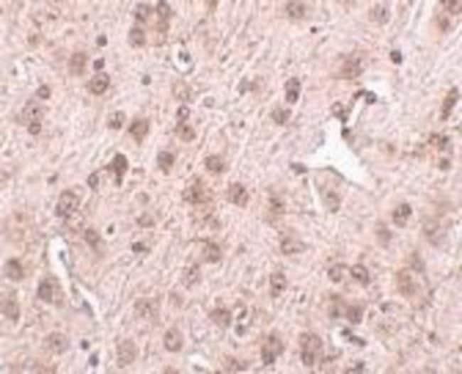 anti-NIPSNAP3A, Polyclonal, Novus Biologicals 0.1mg; Unlabeled:Life Sciences