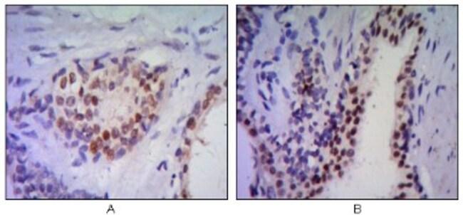 anti-NKX3.1, Clone: 4H4, Novus Biologicals 0.1mL; Unlabeled:Life Sciences