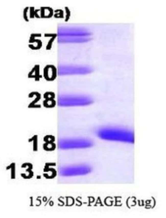 Novus Biologicals Human NM23-H1 Recombinant Protein 0.1mg:Life Sciences