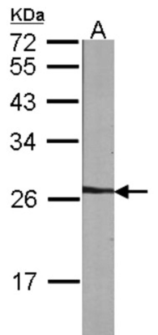 anti-NME5, Polyclonal, Novus Biologicals 0.1mL; Unlabeled:Antibodies