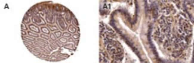 anti-NOD2, Polyclonal, Novus Biologicals:Antibodies:Primary Antibodies