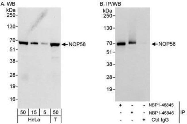 anti-NOP58, Polyclonal, Novus Biologicals 0.1mL; Unlabeled:Life Sciences