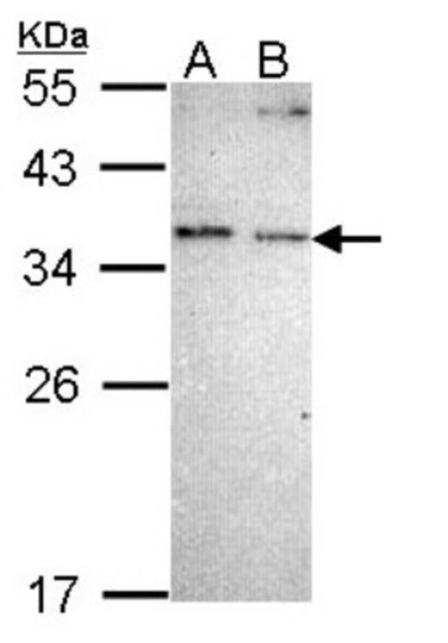 anti-NOSIP, Polyclonal, Novus Biologicals 0.1mL; Unlabeled:Life Sciences