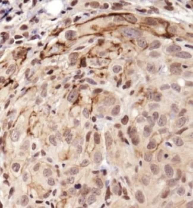 anti-Notch-1, Polyclonal, Novus Biologicals:Antibodies:Primary Antibodies