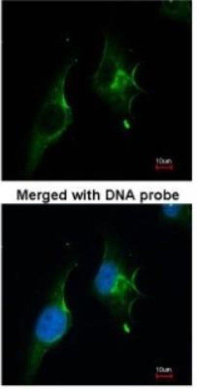 anti-NPR-1/Natriuretic Peptide Receptor A, Polyclonal, Novus Biologicals