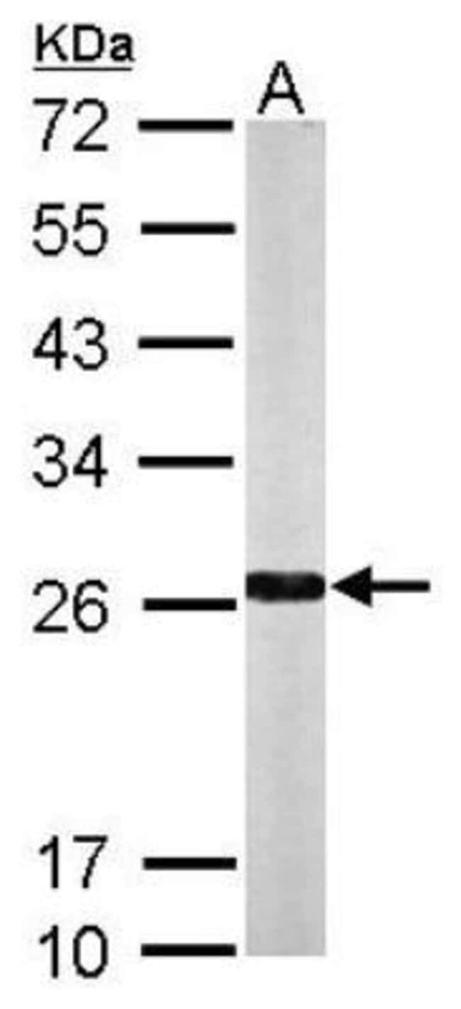 anti-NQO-2, Polyclonal, Novus Biologicals 0.1mg; Unlabeled:Life Sciences
