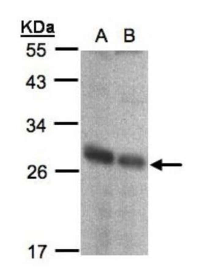 anti-NQO-2, Polyclonal, Novus Biologicals 0.1mg; Unlabeled:Antibodies