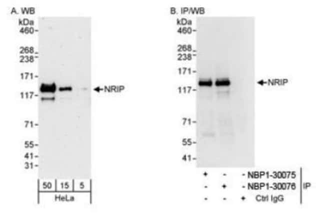 anti-NRIP, Polyclonal, Novus Biologicals 0.1mL; Unlabeled:Antibodies