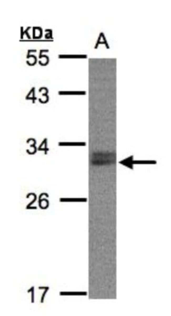 anti-NSMCE1, Polyclonal, Novus Biologicals 0.1mg; Unlabeled:Life Sciences