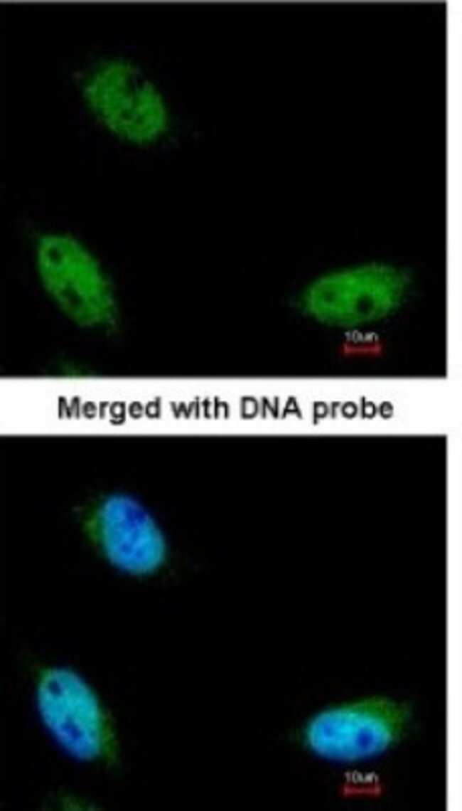 anti-NSUN6, Polyclonal, Novus Biologicals 0.1mL; Unlabeled:Life Sciences