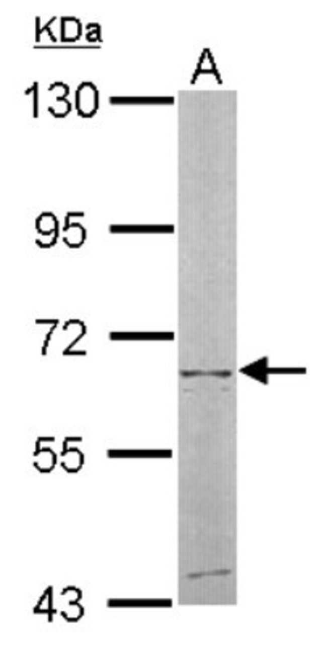 anti-NT5C2, Polyclonal, Novus Biologicals 0.1mg; Unlabeled:Antibodies
