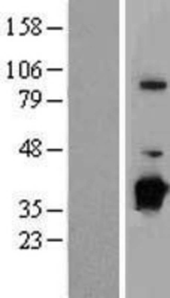 Novus Biologicals NUBP1 Overexpression Lysate (Native) 0.1mg:Life Sciences