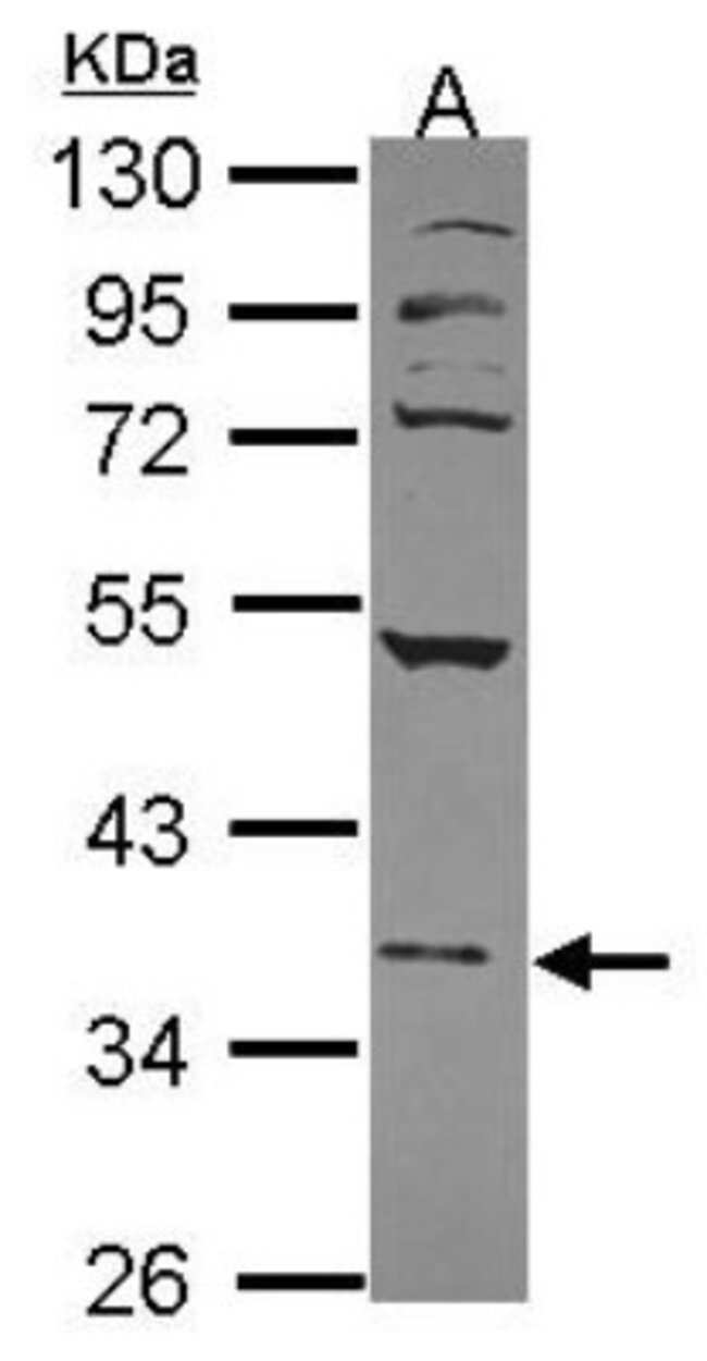 anti-Nuclear Factor Erythroid Derived 2, Polyclonal, Novus Biologicals