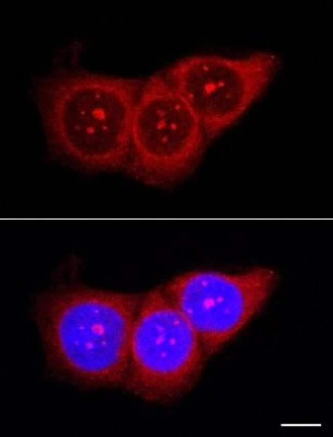 anti-Nucleolin, Polyclonal, Novus Biologicals:Antibodies:Primary Antibodies