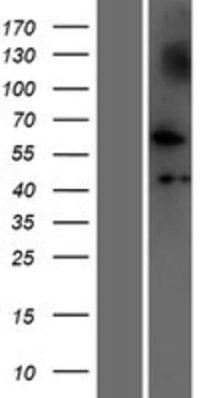Novus Biologicals NUDCD1 Overexpression Lysate (Native) 0.1mg:Life Sciences