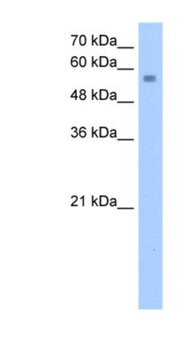 NUDT12 Rabbit anti-Human, Polyclonal, Novus Biologicals 20µL; Unlabeled