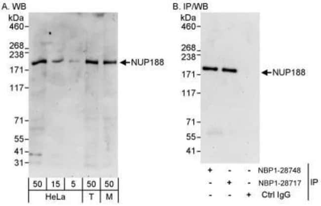 anti-NUP188, Polyclonal, Novus Biologicals 0.1mg; Unlabeled:Antibodies