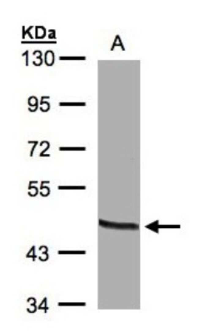 anti-OAT, Polyclonal, Novus Biologicals 0.1mg; Unlabeled:Life Sciences
