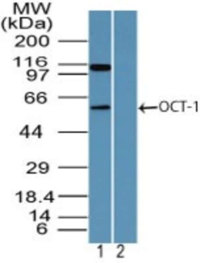 anti-OCT1, Polyclonal, Novus Biologicals:Antibodies:Primary Antibodies