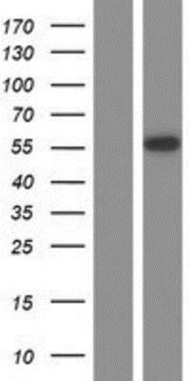 Novus Biologicals OCT2 Overexpression Lysate (Native) 0.1mg:Life Sciences