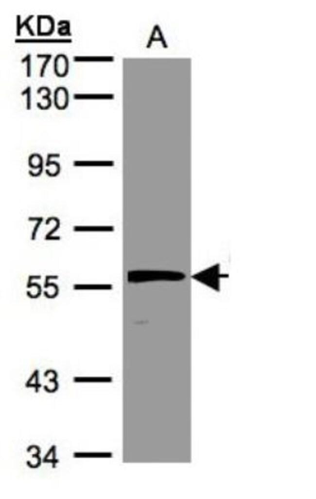 anti-Olfactomedin-1/Noelin-1, Polyclonal, Novus Biologicals 0.1mg; Unlabeled:Life