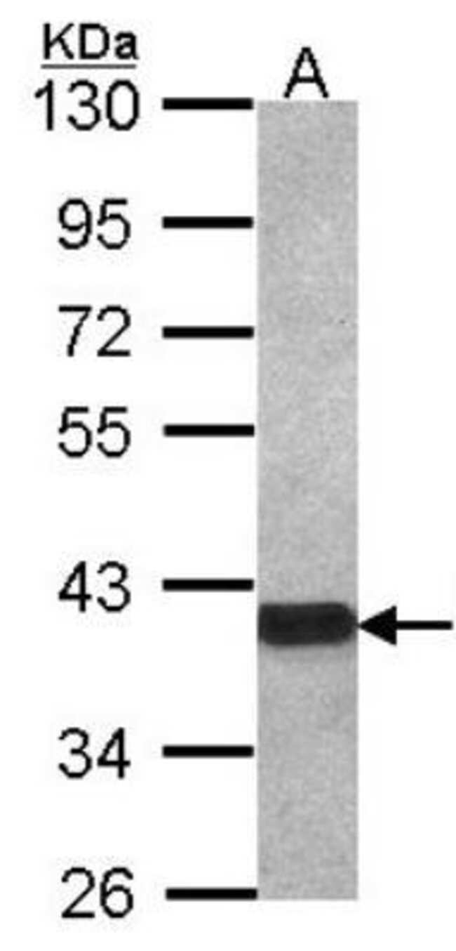 anti-OMgp, Polyclonal, Novus Biologicals 0.1mg; Unlabeled:Life Sciences