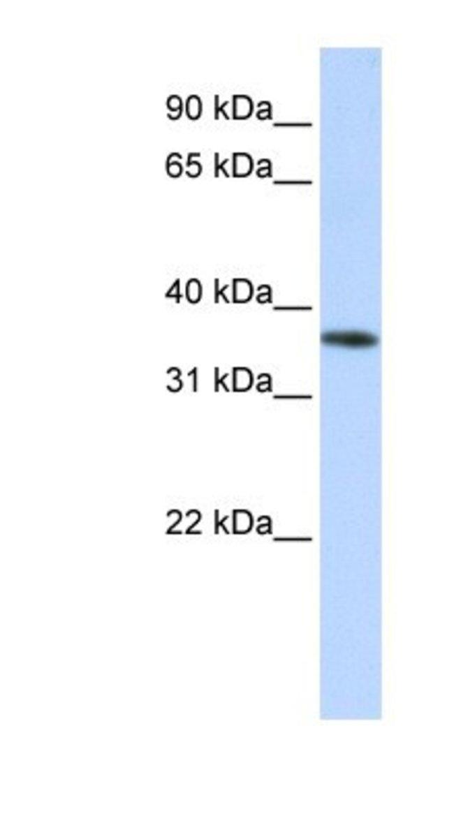 OR13C5 Rabbit anti-Human, Polyclonal, Novus Biologicals 100µL; Unlabeled:Life