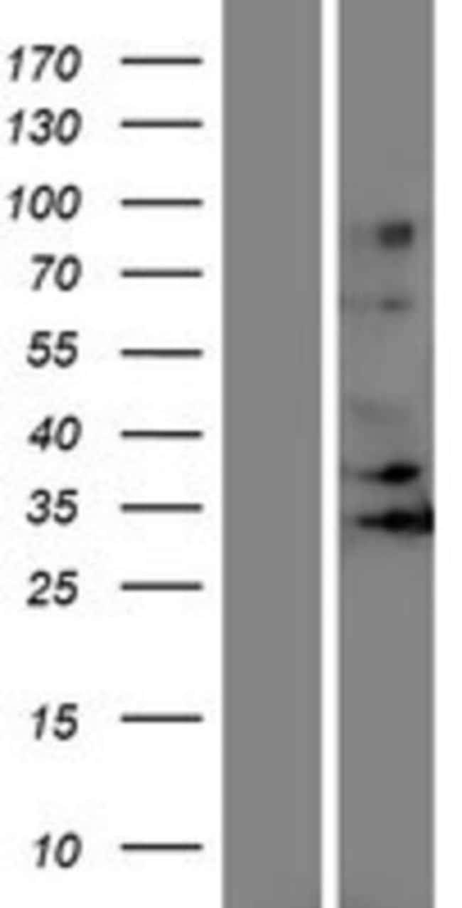 Novus Biologicals OR5J2 Overexpression Lysate (Native) 0.1mg:Life Sciences