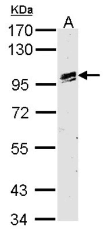 anti-OSR1, Polyclonal, Novus Biologicals 0.1mg; Unlabeled:Antibodies