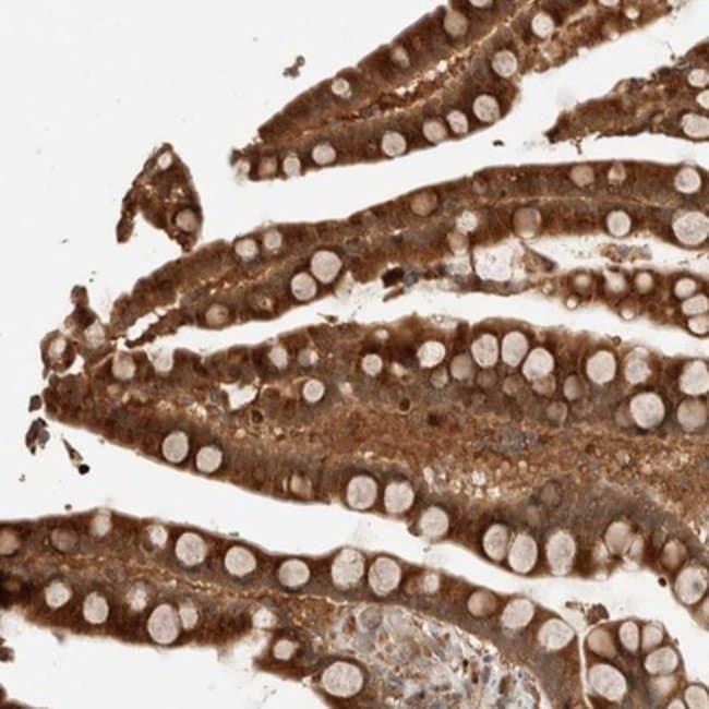 anti-OTUD6B, Polyclonal, Novus Biologicals:Antibodies:Primary Antibodies