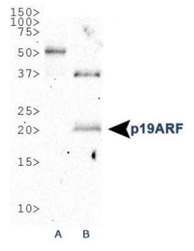 anti-p19ARF, Polyclonal, Novus Biologicals:Antibodies:Primary Antibodies