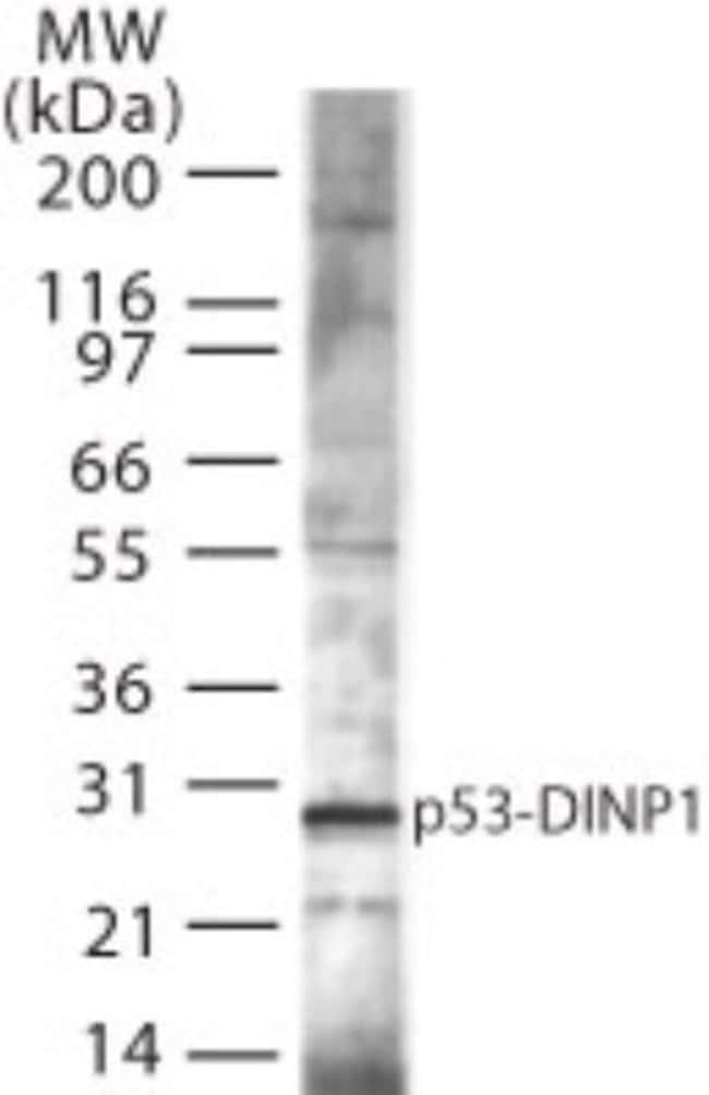 anti-p53 DINP1, Polyclonal, Novus Biologicals:Antibodies:Primary Antibodies