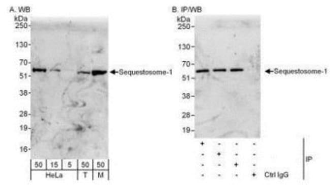 p62/SQSTM1 Rabbit anti-Human, Mouse, Canine, Polyclonal, Novus Biologicals