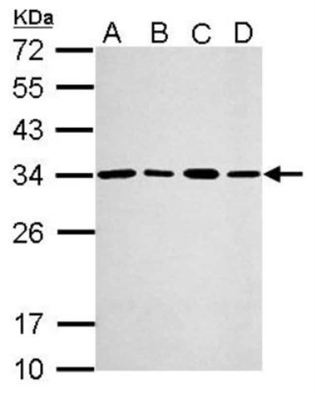 anti-PA28 Activator gamma Subunit/PSME3, Polyclonal, Novus Biologicals