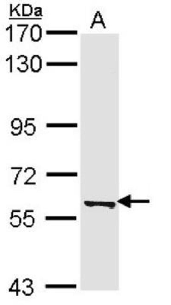 anti-PADI4, Polyclonal, Novus Biologicals 0.1mg; Unlabeled:Life Sciences