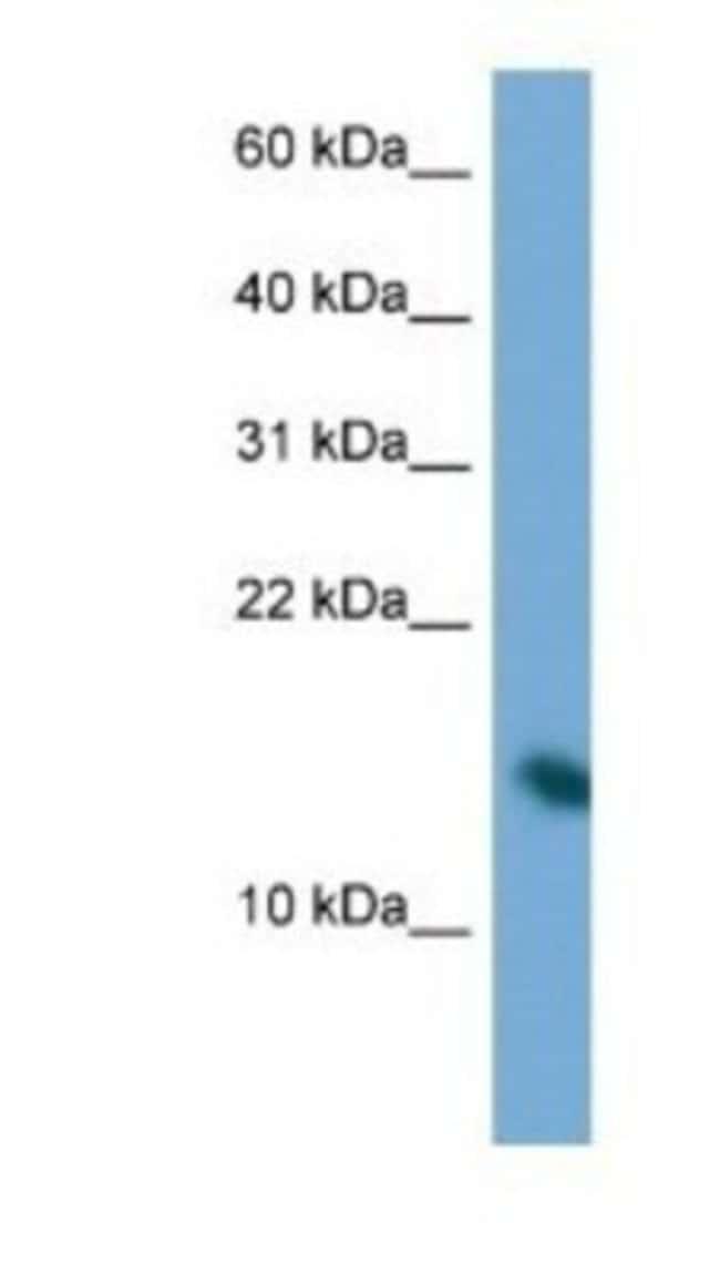 PAIP2 Rabbit anti-Human, Polyclonal, Novus Biologicals 20µL; Unlabeled