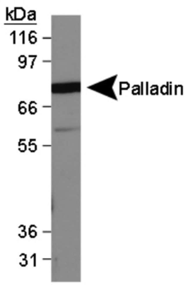 anti-Palladin, Clone: 1E6, Novus Biologicals 0.025mL; Unlabeled:Life Sciences