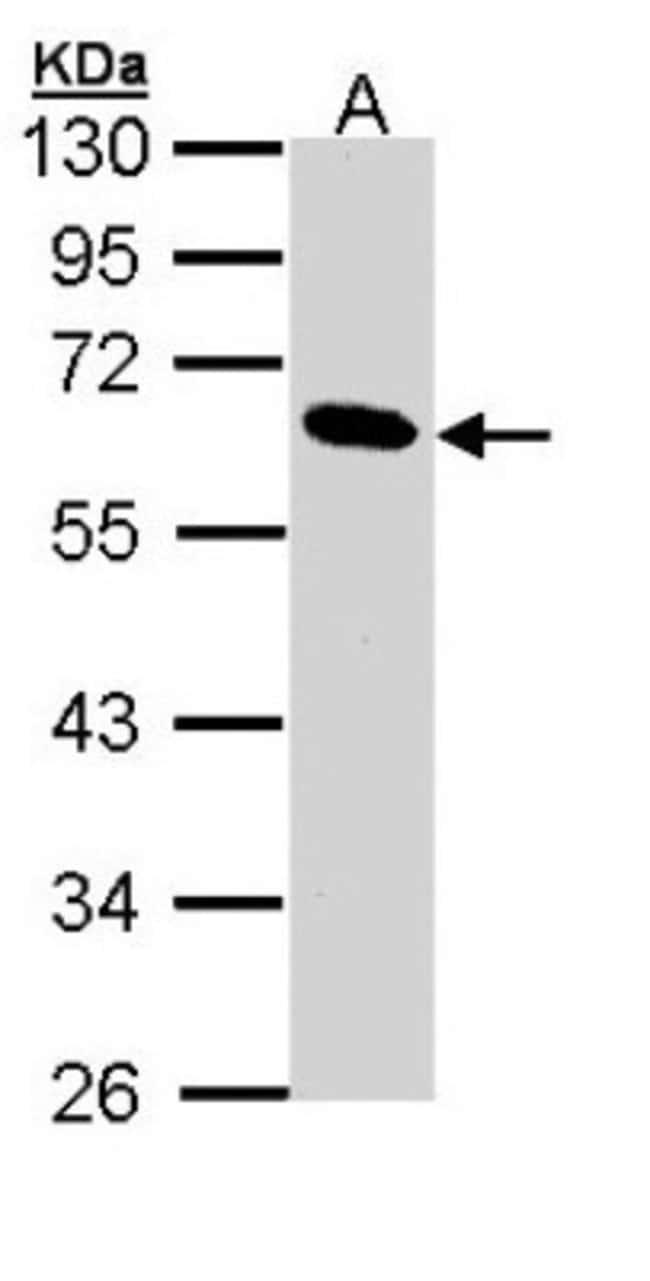 anti-Pancreatic Lipase, Polyclonal, Novus Biologicals 0.1mg; Unlabeled:Life