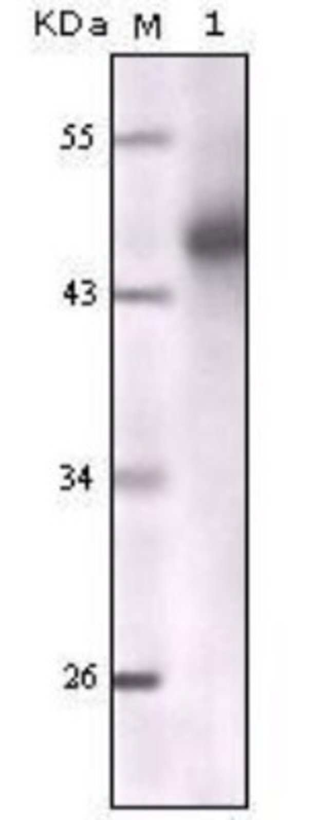 anti-pan Cytokeratin, Clone: 7H8C4, Novus Biologicals 0.1mL; Unlabeled:Life