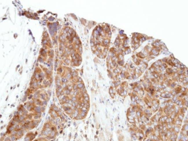 anti-PAP39, Polyclonal, Novus Biologicals 0.1mL; Unlabeled:Antibodies