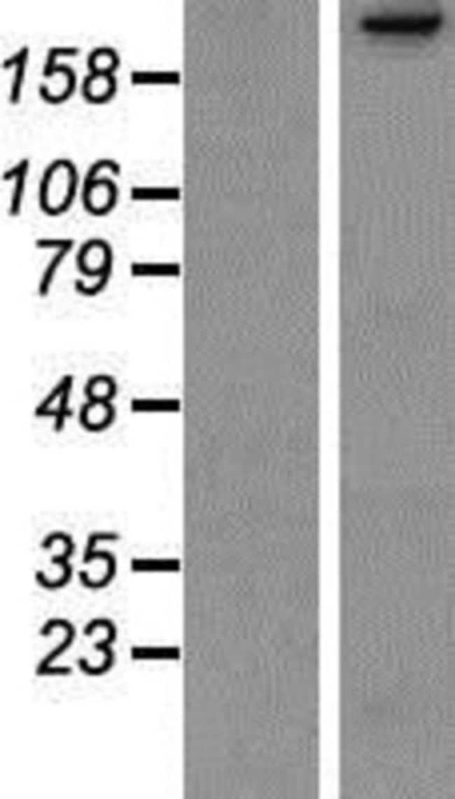 Novus Biologicals PARC Overexpression Lysate (Native) 0.1mg:Life Sciences