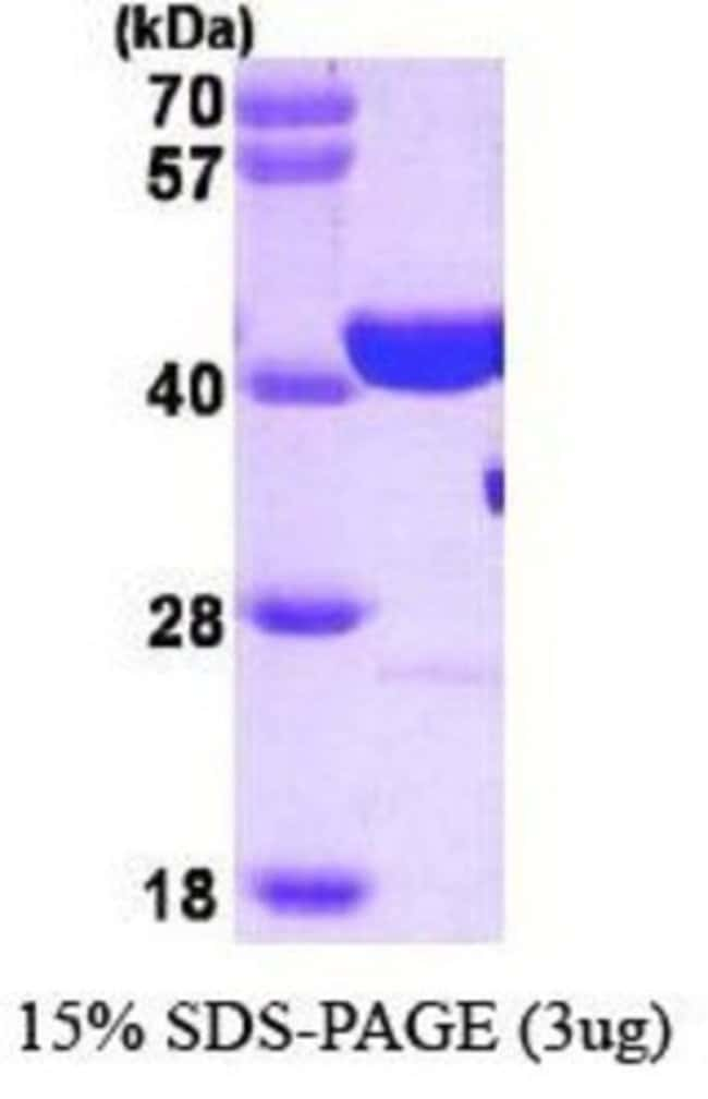 Novus Biologicals Human PARP Protein 0.1mg; Unlabeled:Life Sciences